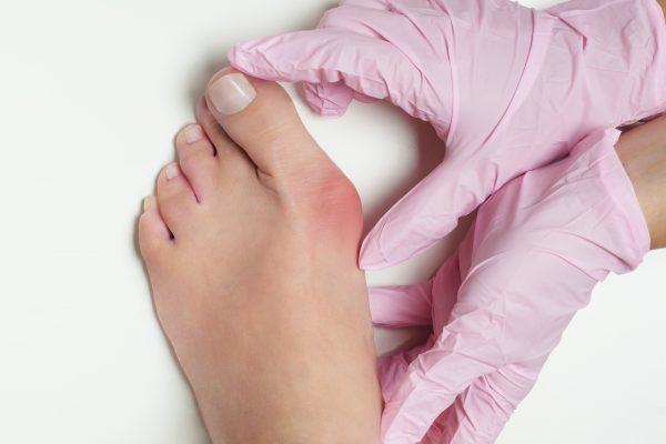 Die Pseudoexostose Hallux Valgus: Symptome, Ursachen und Behandlung