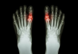 Gout , Rheumatoid Arthritis (Film X-ray Both Foot And Arthritis