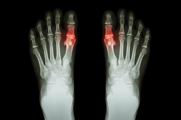 Jeder Schritt eine Qual: Arthrose im Zehengelenk des Großzehs (Hallux rigidus)